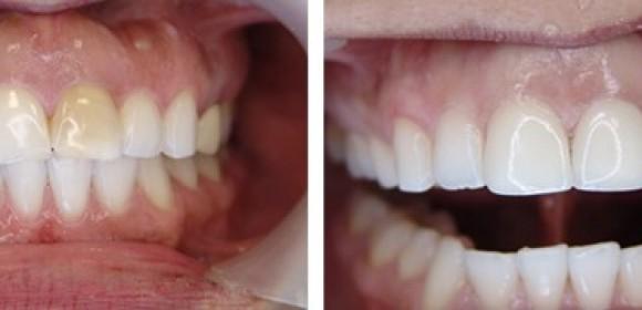 Coronas estéticas, las prótesis que restauran dientes