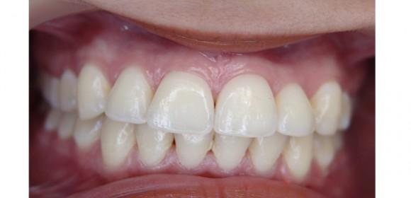Endodoncia, el tratamiento que salva dientes