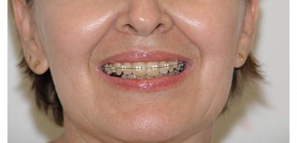 Tipos de brackets, alternativas que mejoran y embellecen tu sonrisa