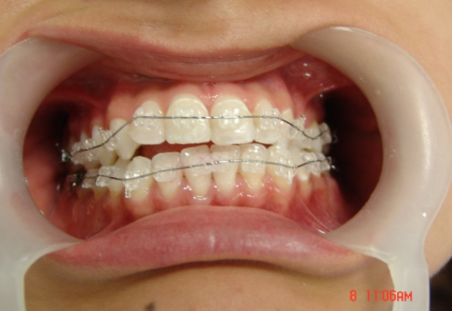 Ortodoncia Estetica Jcm Estetica Dentaljcm Estetica Dental