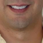 Este es el resultado de un tratamiento con Coronas Dentales de alta estética